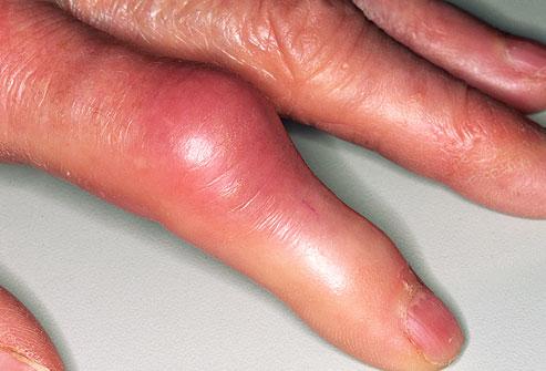 artrózis kezelés lenmaggal hogyan lehet érzésteleníteni a lábak ízületeit