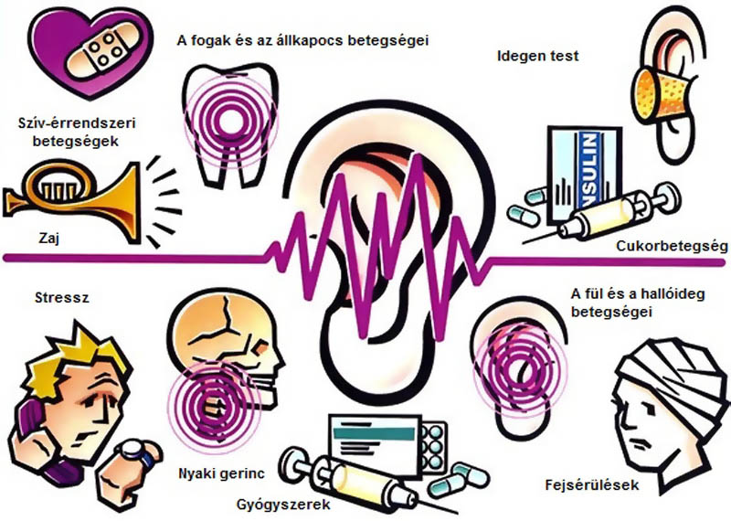 A tinnitus kiváltó okai