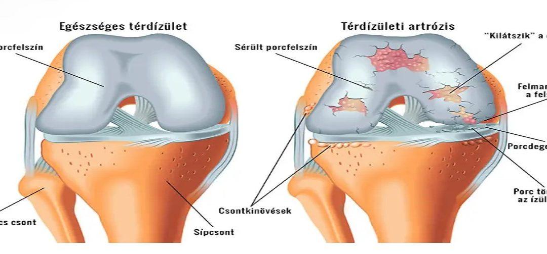 artrózis kámfor kezelés