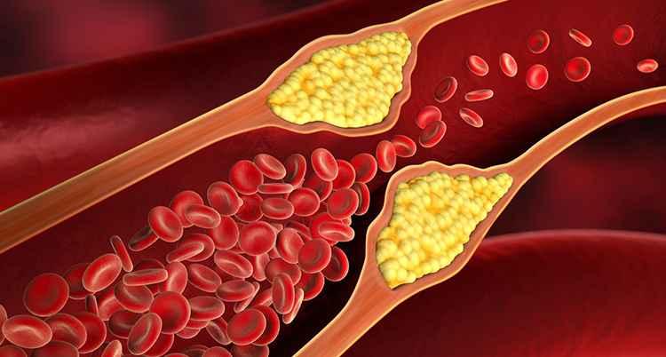 koleszterin
