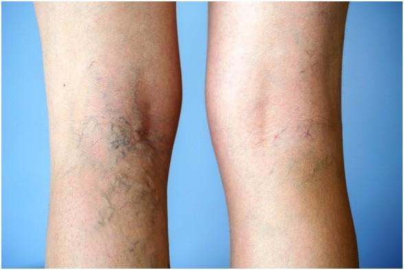A visszérbetegség a lábakon megjelenő dagadó erek betegsége